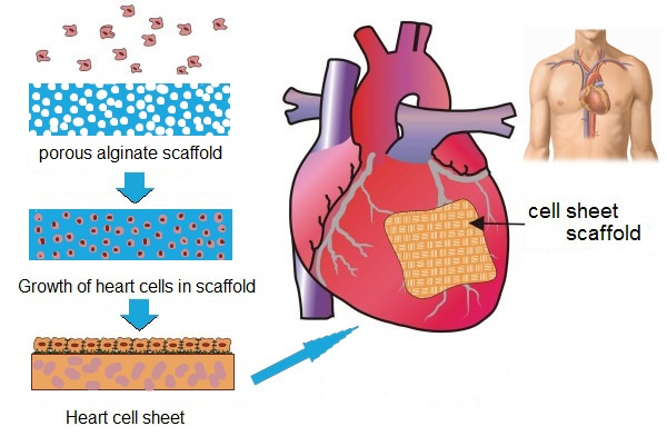 Cardiac patch demonstrated