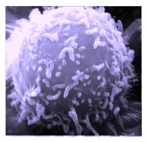 Smart nanoparticles to target and destroy cancer recurring stem cells